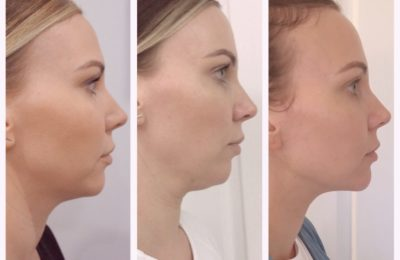 Everything you Need to Know about Fat Dissolving Injections